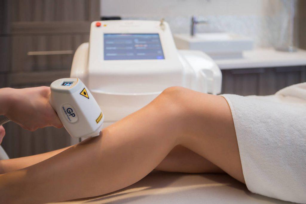 Laser hair removal, epilation, diode laser